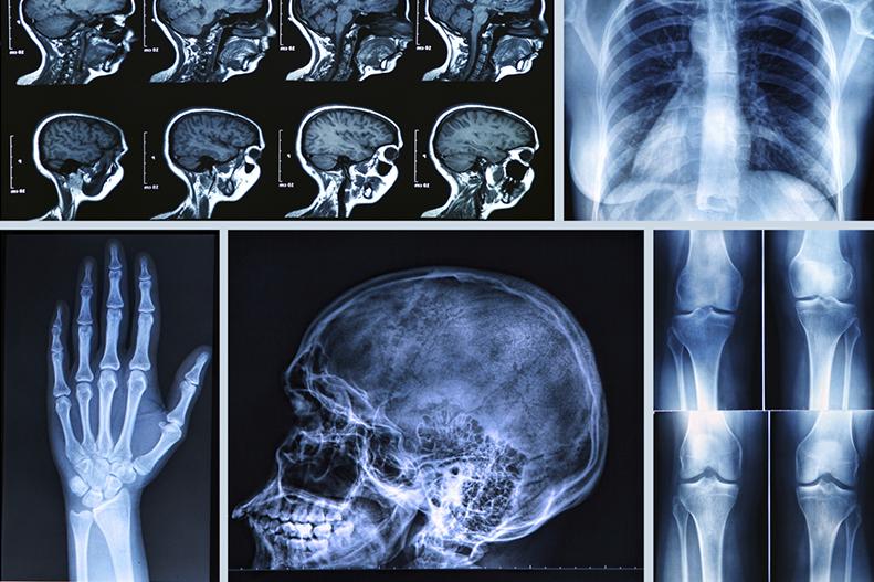Российский медик рассказал, когда пациентам с COVID-19 назначают КТ вместо рентгена