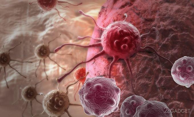 Протоны ударят по онкологии