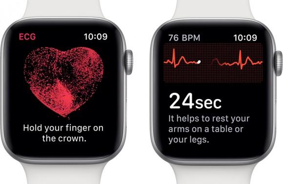 Функция электрокардиограммы в новых Apple Watch станет доступна и в России