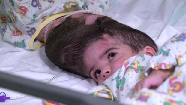 Виртуальная реальность помогла врачам разделить настоящих сиамских близнецов