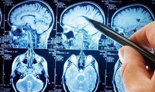 Заснят процесс «промывки» головного мозга спинномозговой жидкостью