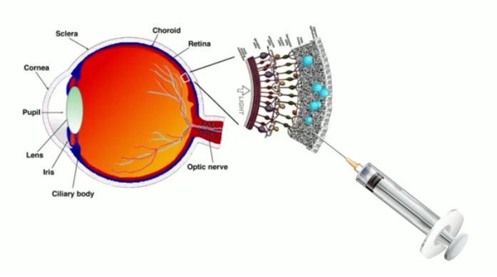 Создан первый в мире жидкий протез сетчатки глаза