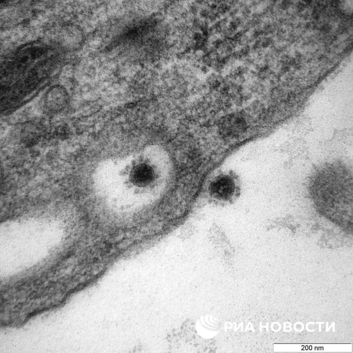 Дельта-штамм коронавируса показали на фото